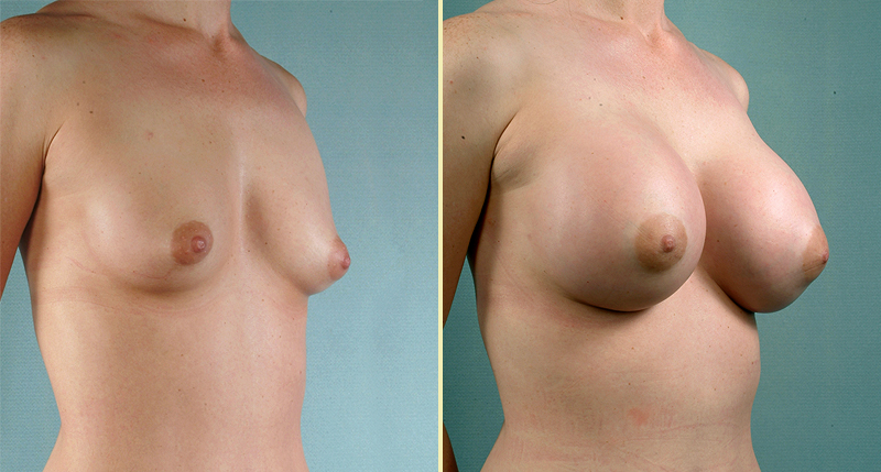 free classifieds ads perky breasts